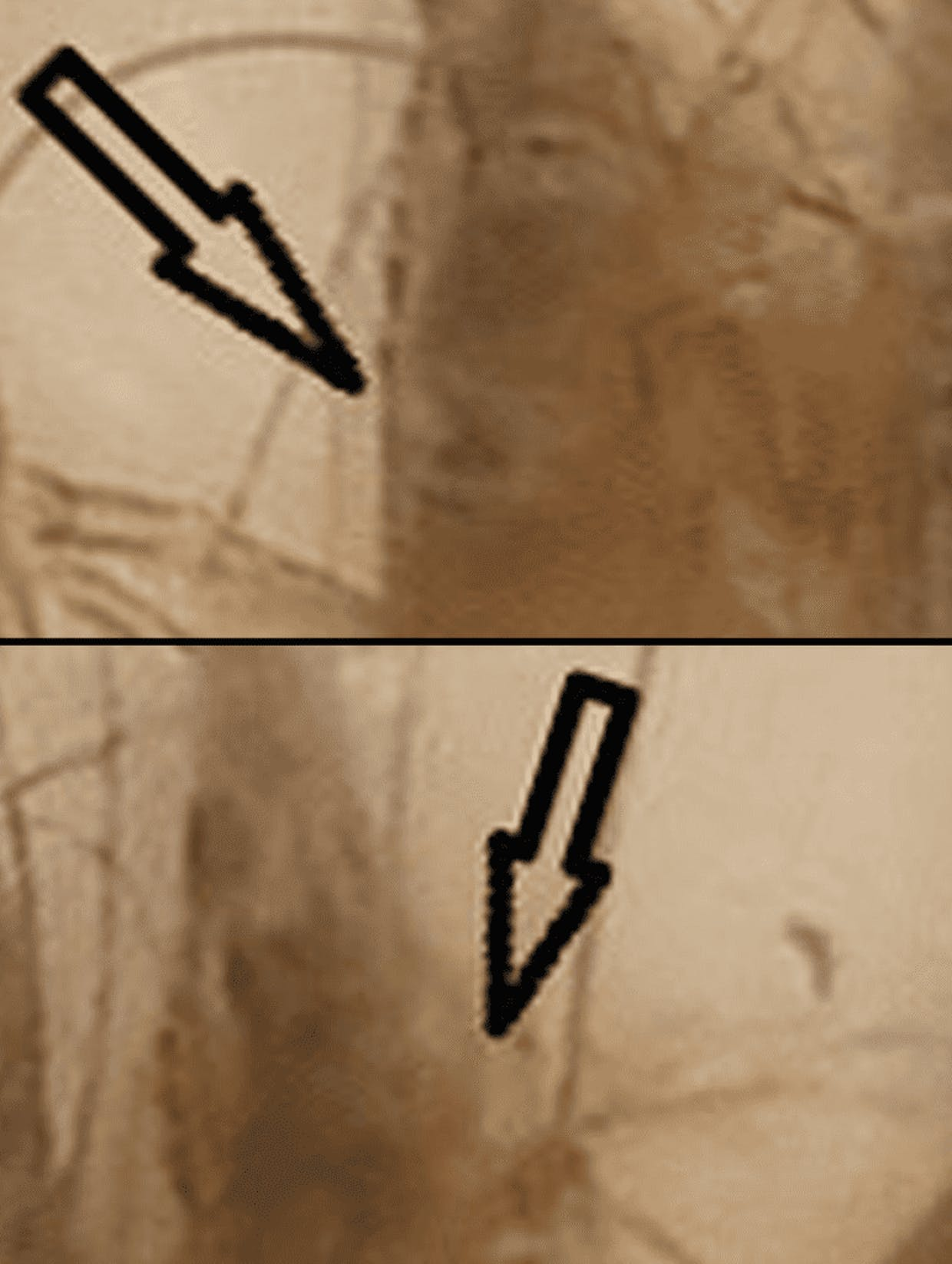 In addition to my previous question maybe the image is more clear here.